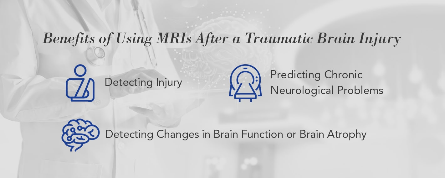 Benefits of Using MRIs After a Traumatic Brain Injury