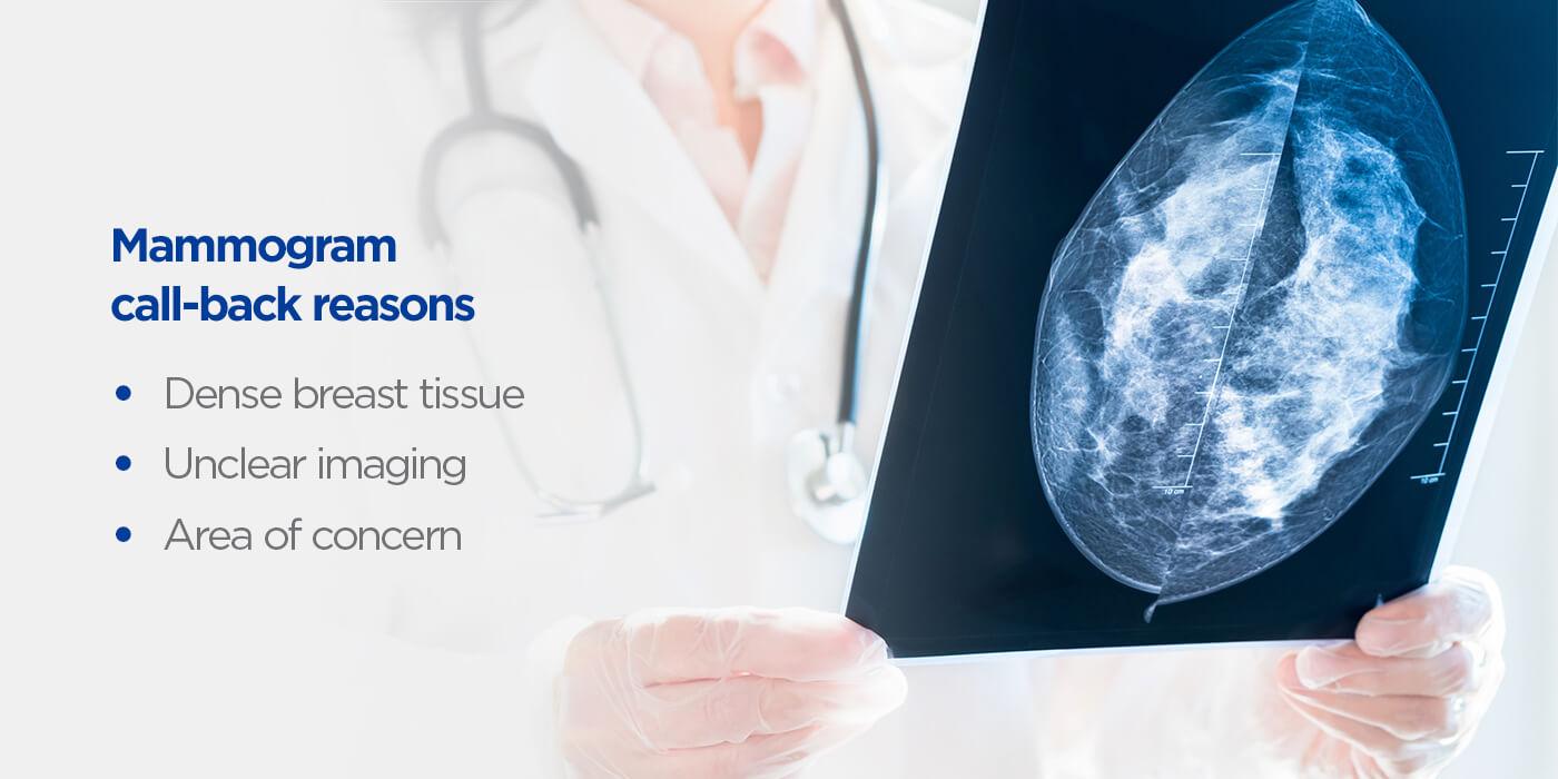 Mammogram-call-back-reasons